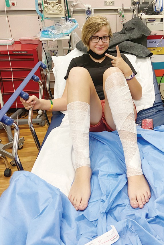 Belcher has first and second degree burns on her legs. Photos submitted by Cheryl Cobbs
